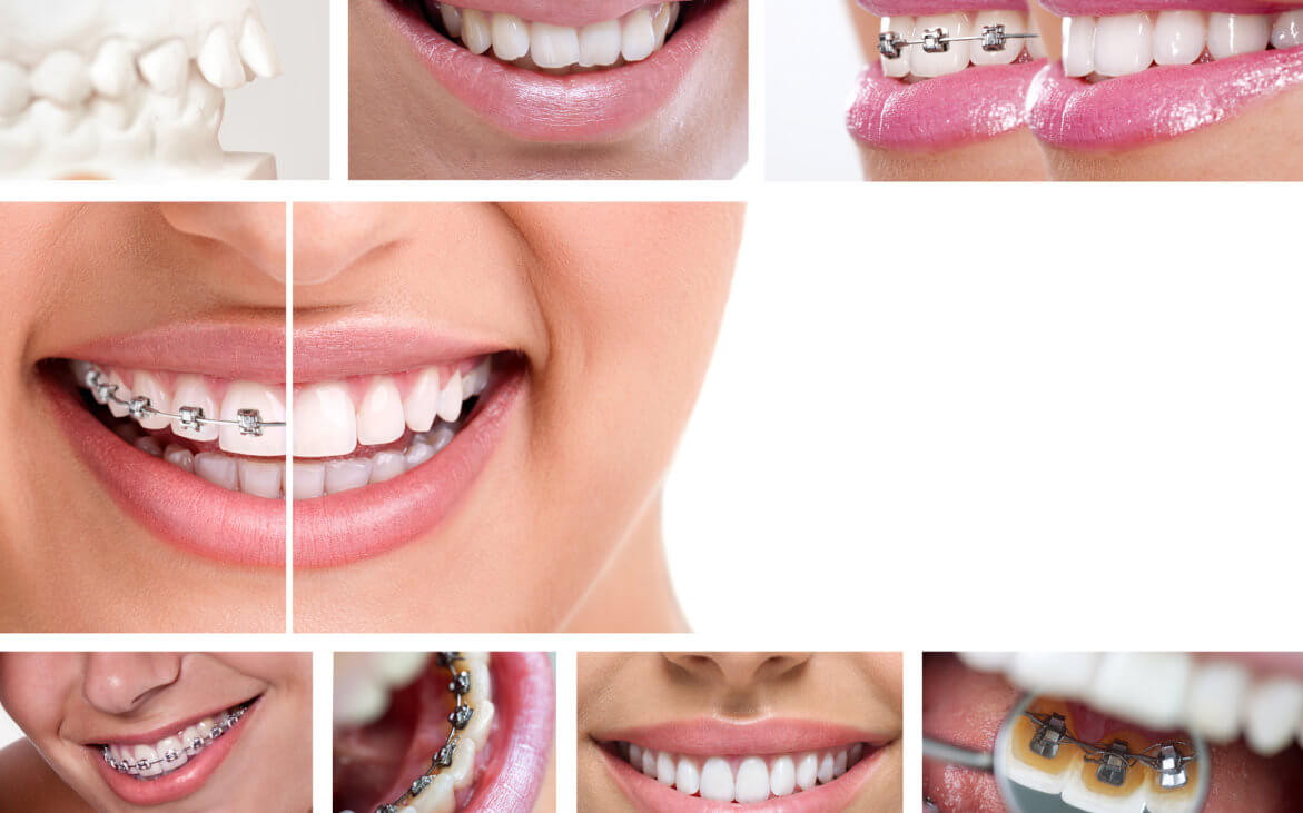 images of fastbraces